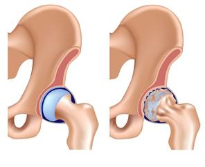 A csípőízület deformált artrózisa 3 fokos kezelés